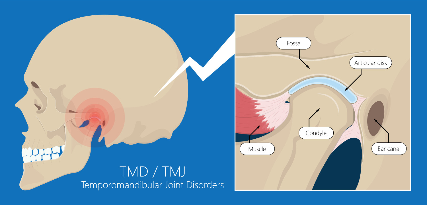 Temporomandibular Joint Dysfunction (TMJ Syndrome)